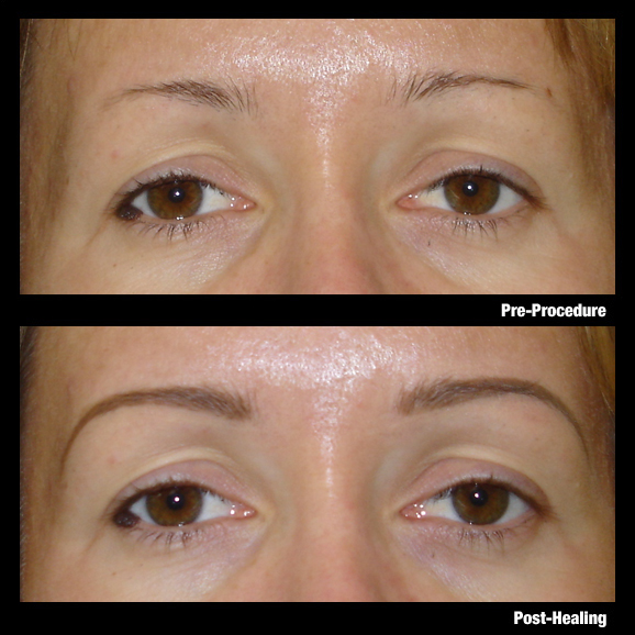 Permanent Eyebrows Diane Makish Permanent Makeup Fort Lauderdale Fl