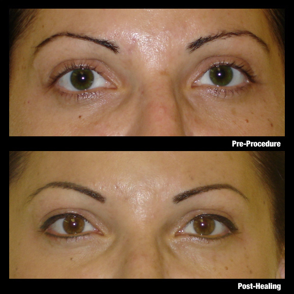 Permanent Eyebrows Diane Makish Permanent Makeup Fort