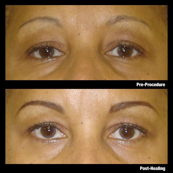 Permanent Eyebrows Diane Makish Permanent Makeup Fort Lauderdale Fl