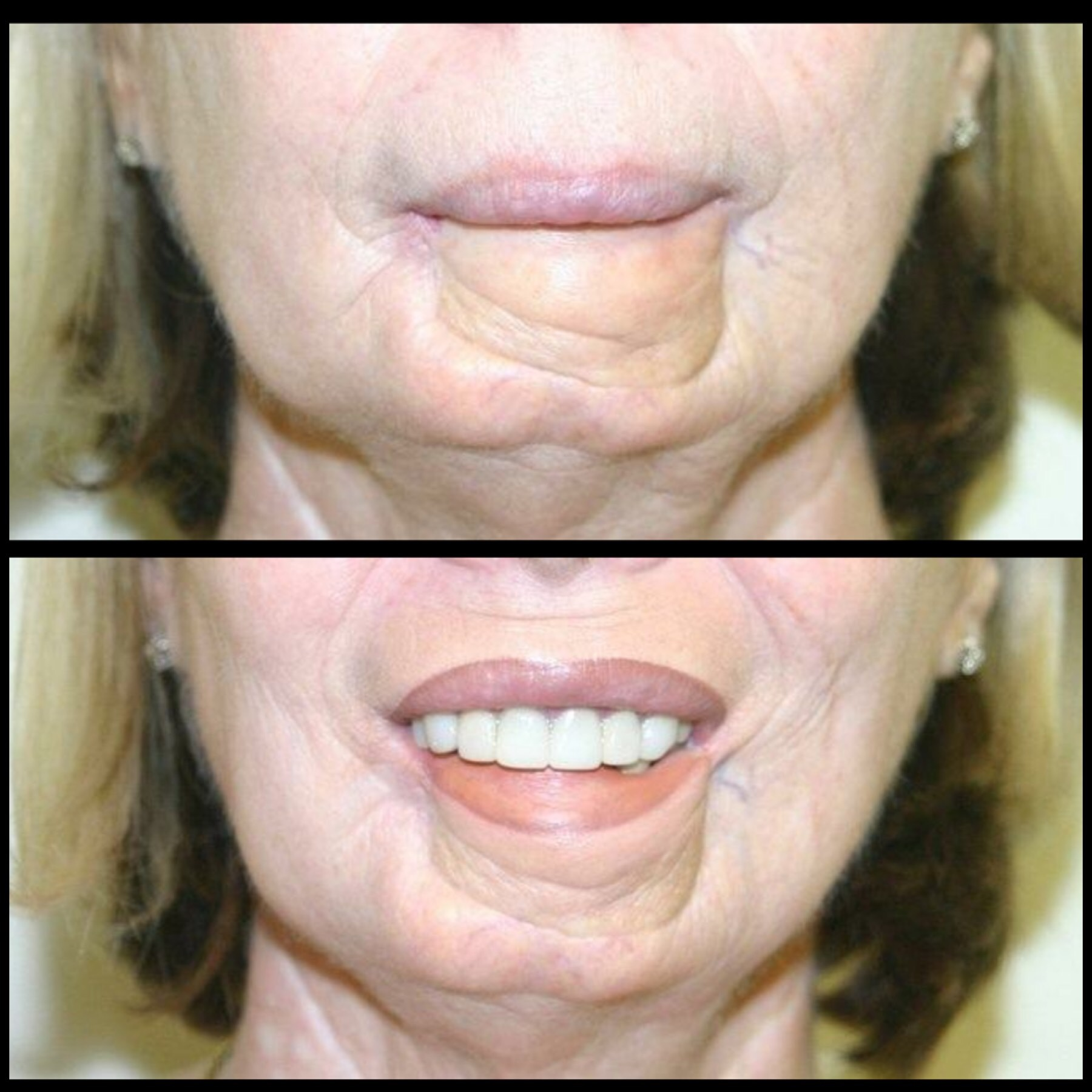Permanent Lips Diane Makish Permanent Makeup Fort Lauderdale Fl